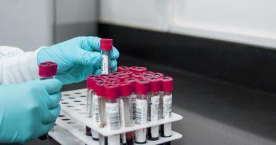 Infekcje i nowotwory: Związek może być silniejszy niż nam się wydaje