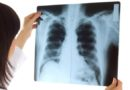 Nie lekceważ kaszlu! Jak diagnozujemy nowotwory układu oddechowego