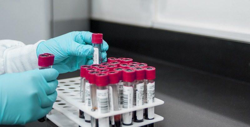 Odkryto nowy sposób identyfikowania koronawirusa