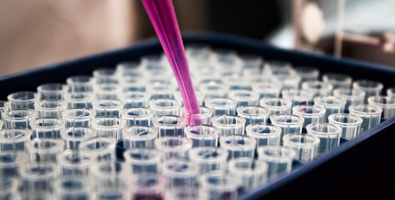 Odkryto nowy sposób wykrywania raka płuc