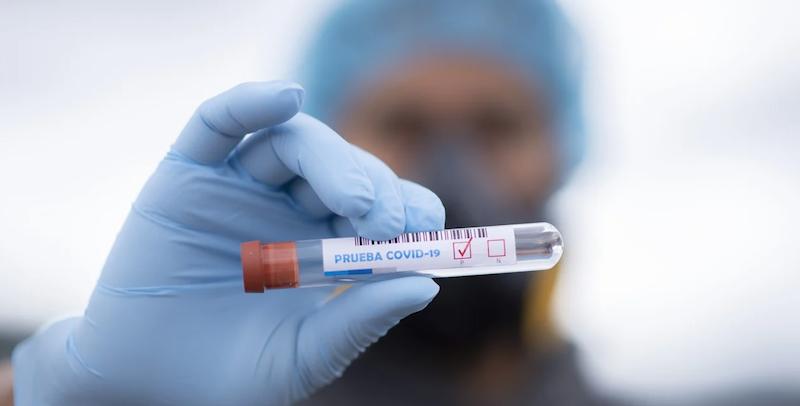 Naukowcy opracowali dokładny i wszechstronny test na koronawirusa