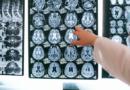 Badanie: COVID-19 może zmniejszyć objętość istoty szarej w mózgu